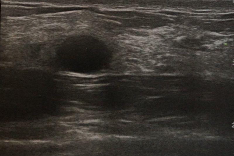 Para que sirve la ecografía mamaria - Instituto Dra Gómez Roig