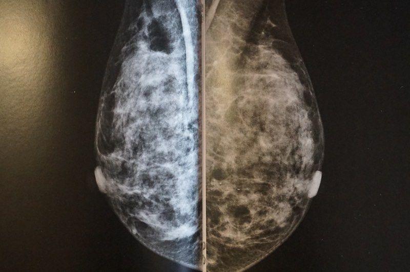 Qué he de saber de la mamografia